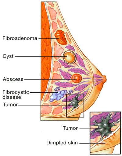 Боль в грудных железах: причины, диагностика, лечение