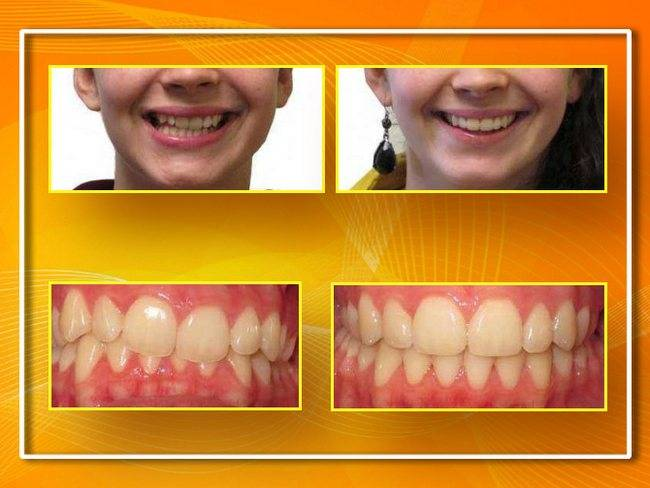 Все о сепарации зубов: показания, фото до и после процедуры, последствия