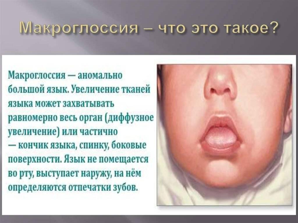 Макроглоссия (увеличенный язык): причины, симптомы, лечение, последствия