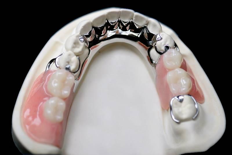 Методики и особенности протезирования при полном отсутствии зубов