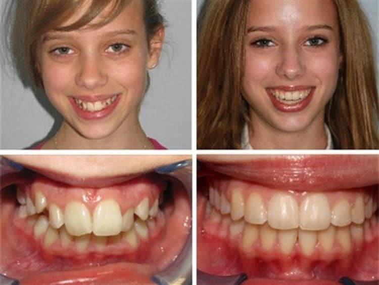Каким образом брекеты выравнивают зубы? основной принцип их работы