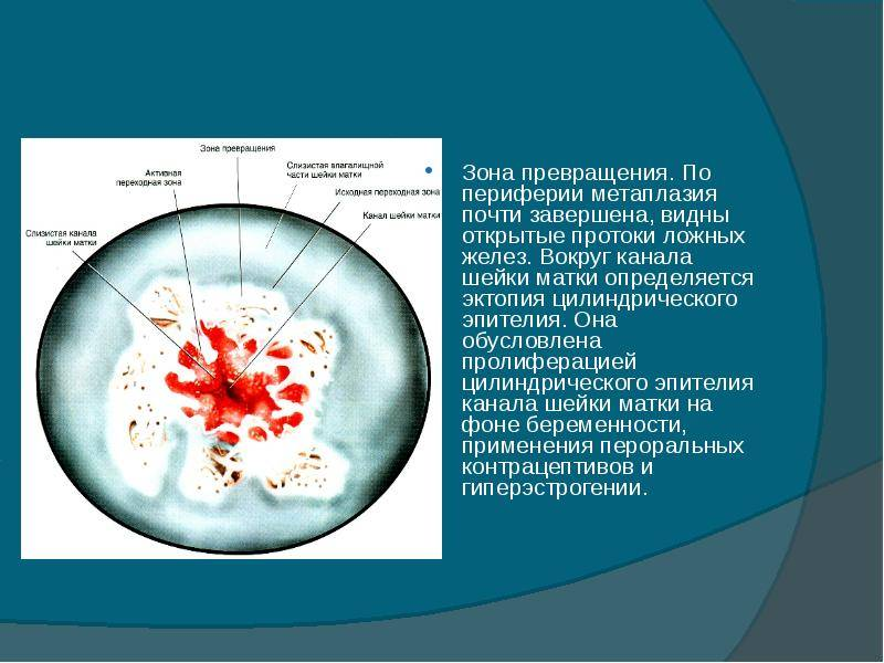 Эктопия шейки матки, что это? причины, виды и методы лечения