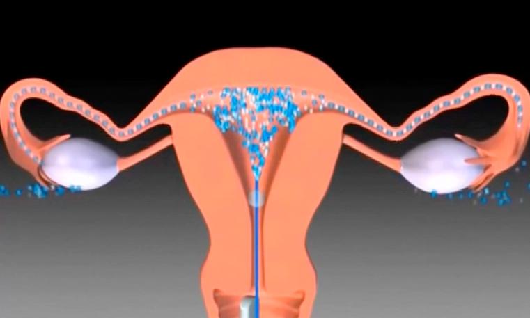 Какие методы применяются для диагностики проходимости маточных труб?