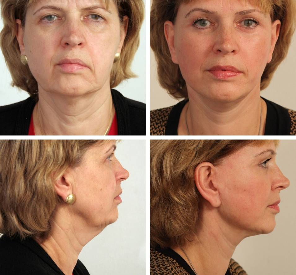 Пиявки от морщин на лице: все секреты и особенности проведения процедуры