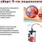 Чем лечить кровоточивость десен при беременности?