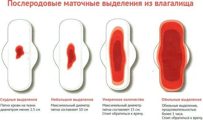 Можно ли делать желтый пилинг при менструации