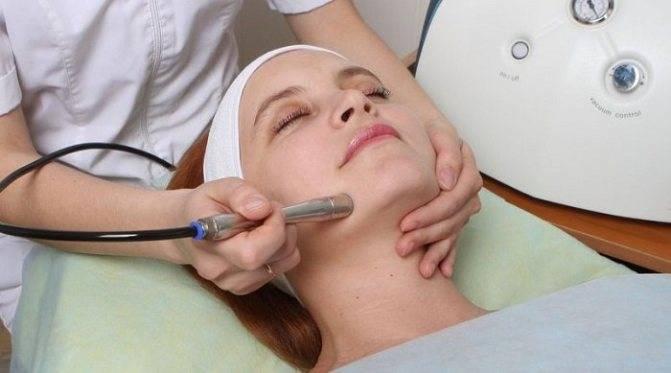 Чистка лица азотом: какая эффективность процедуры при разных проблемах кожи