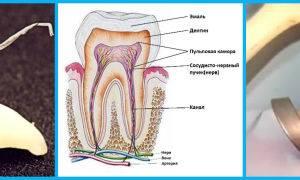 Воспаление зубного нерва: симптомы, лечение, устранение боли в домашних условиях