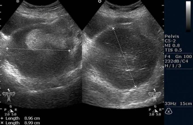 Проявление тератомы яичника и способы ее лечения
