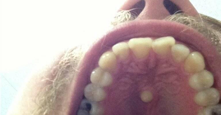 Шишка на внутренней стороне губы: причины появления и методы лечения