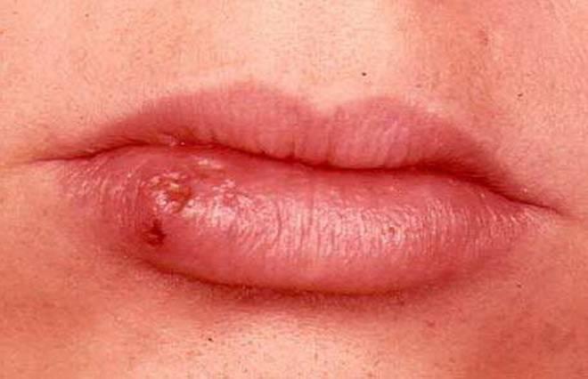 Болячки в уголках губ: причины, признаки и лечение