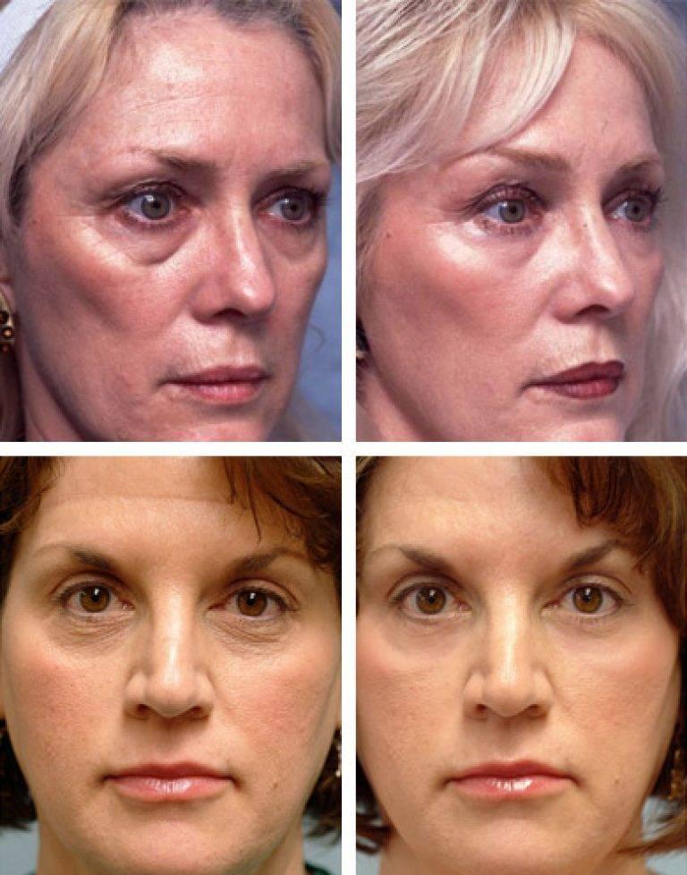 Применение цинковой мази в косметологии: боремся с несовершенствами лица