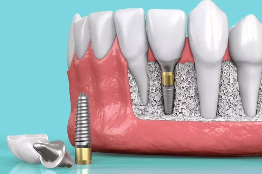 Основные преимущества имплантов osstem и подробные их характеристики