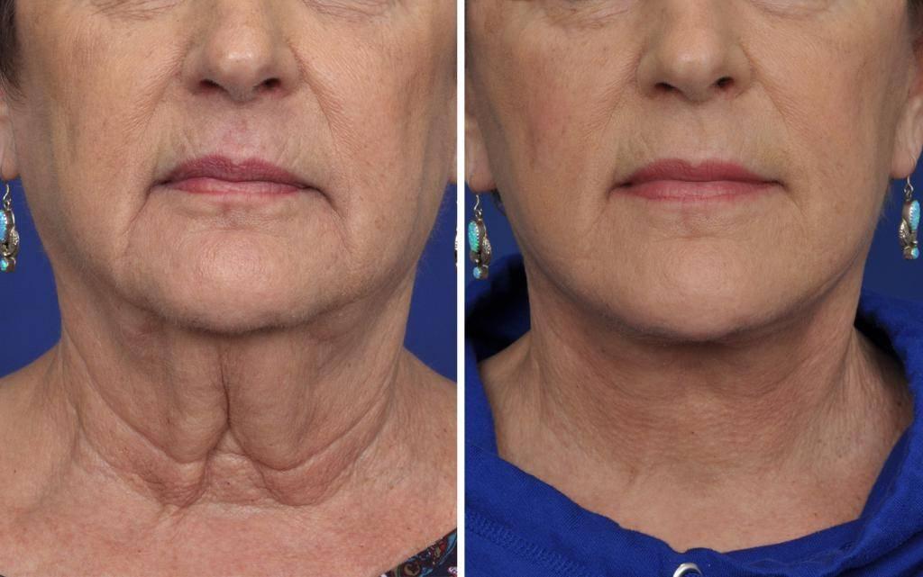 Нитевой лифтинг кожи лица — плюсы и минусы эффективной процедуры омоложения