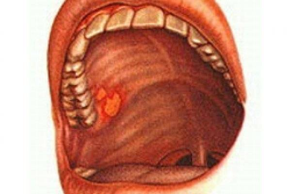 Под языком пузырь может быть сигналом о серьезном заболевании