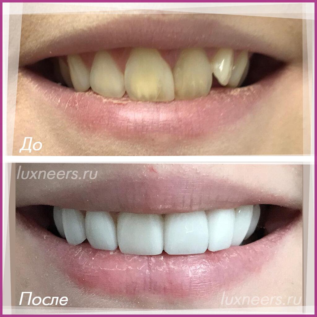 Процедура установки виниров на зубы: преимущества и недостатки