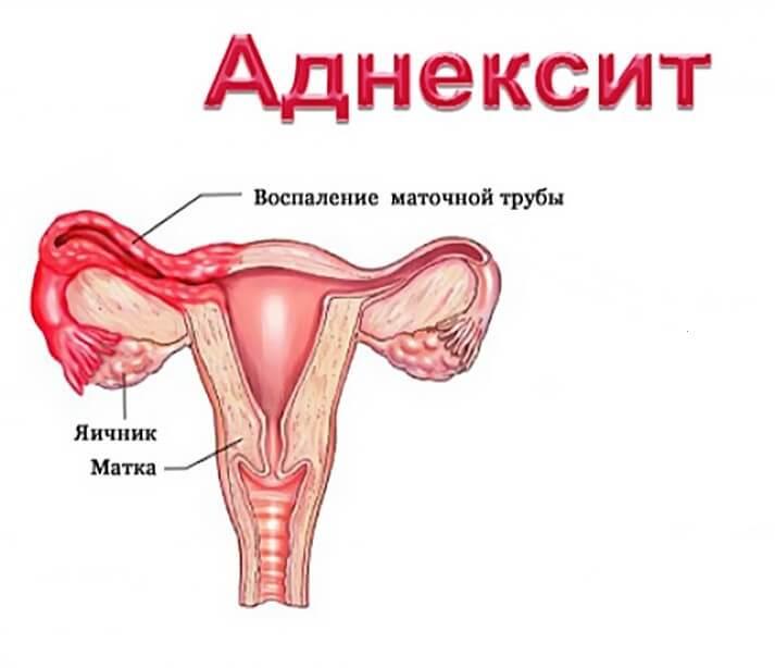 Список самых распространенных гинекологических заболеваний у женщин и их симптомы