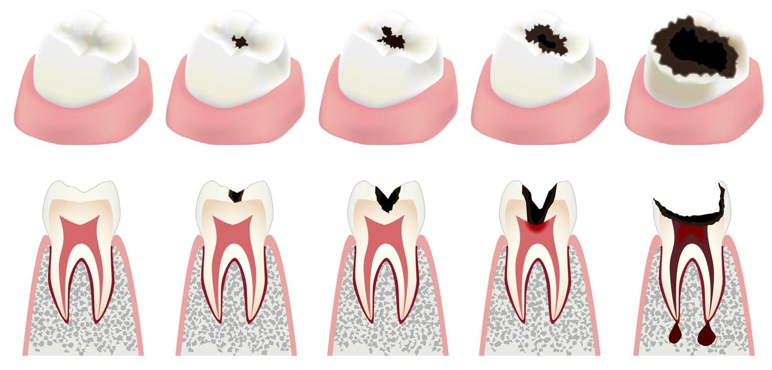 Ретенция и дистопия зуба: особенности и лечение