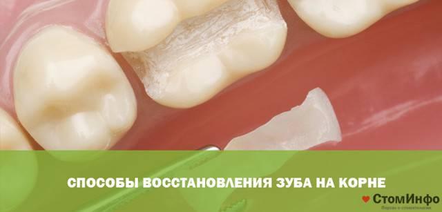 Что можно сделать, если зуб сломался, а корень остался в десне: полное удаление и восстановление