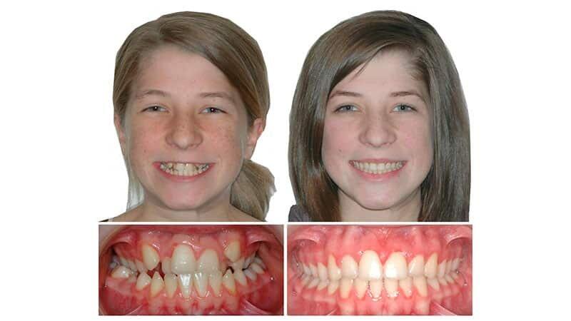 Врач который выпрямляет зубы как называется