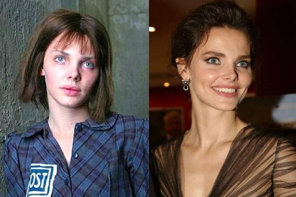 Виктория боня до и после пластики — фото, личная жизнь, рост, вес. новые пластические операции