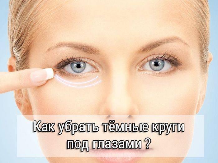 Как убрать мешки и синяки под глазами?