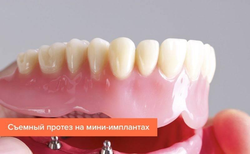 Как происходит протезирование передних зубов?