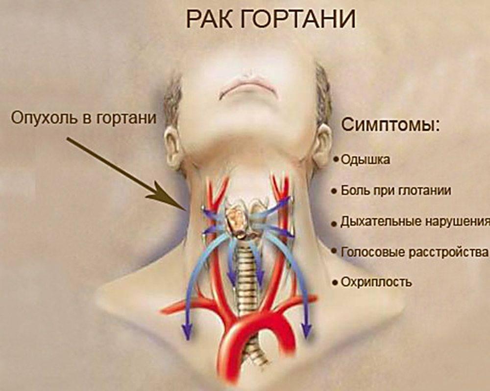 Рак десен: симптомы, первые признаки и методы лечения