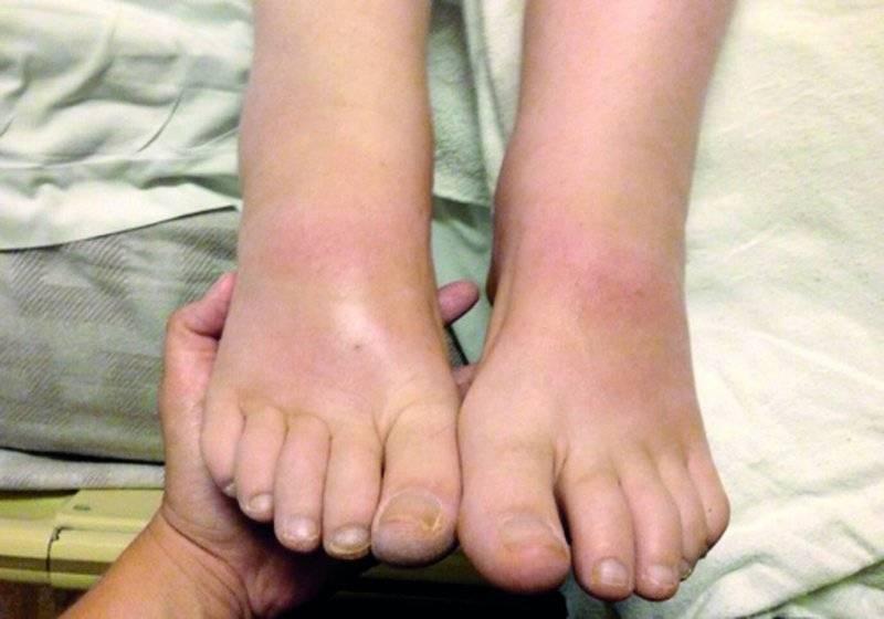Отеки ног при климаксе лечение