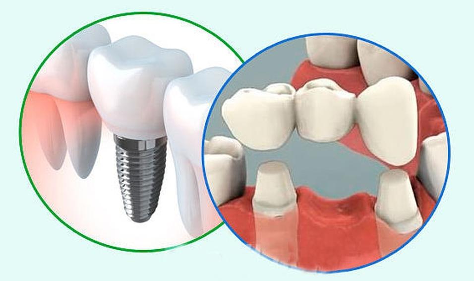 Имплантация зубов: виды и цены