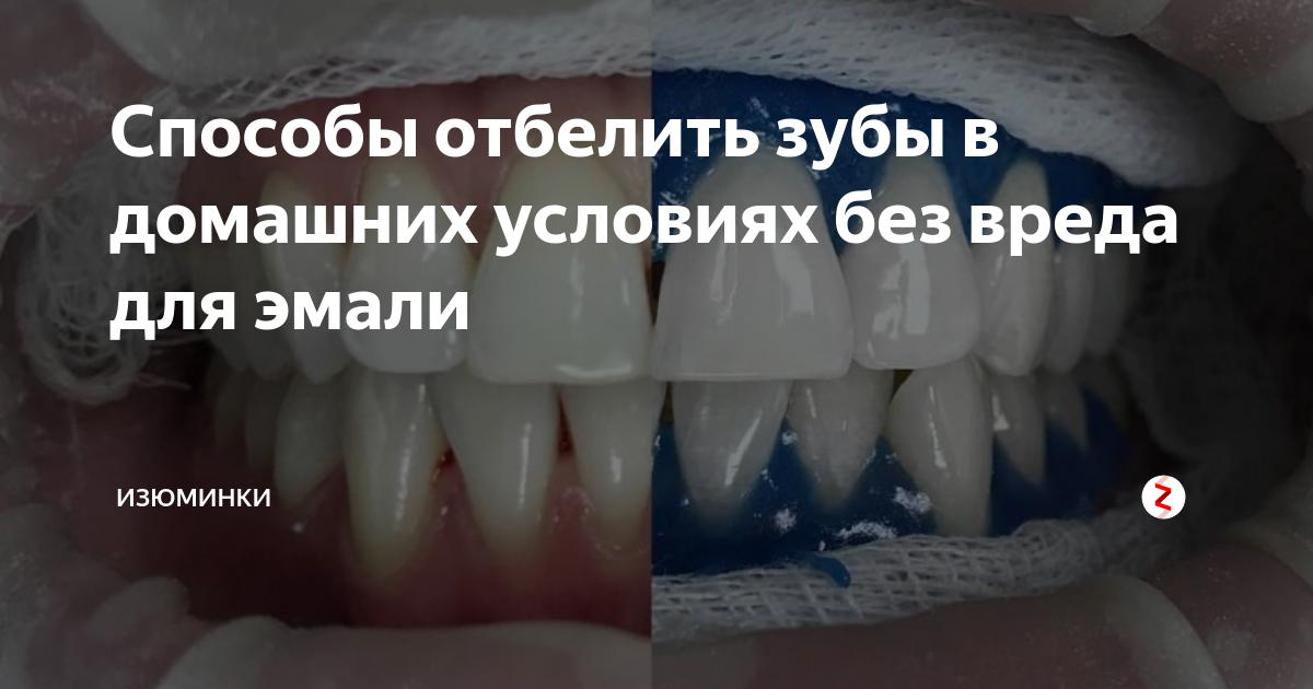 10 продуктов и напитков, от которых желтеют зубы, и 6 способов отбелить эмаль