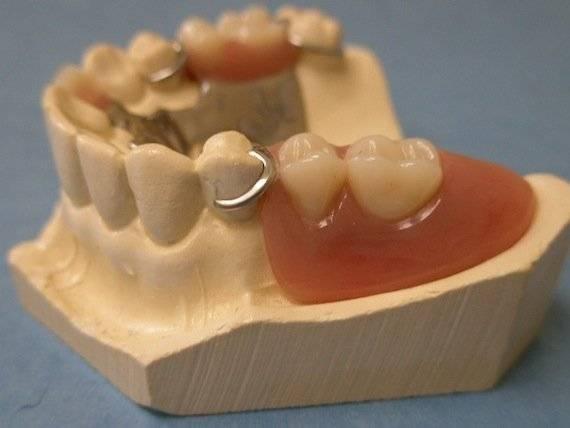 Кламмеры для зубных протезов: классификация, виды, изготовление