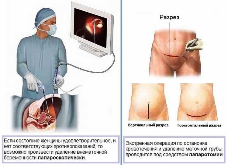 Делают ли операции при месячных