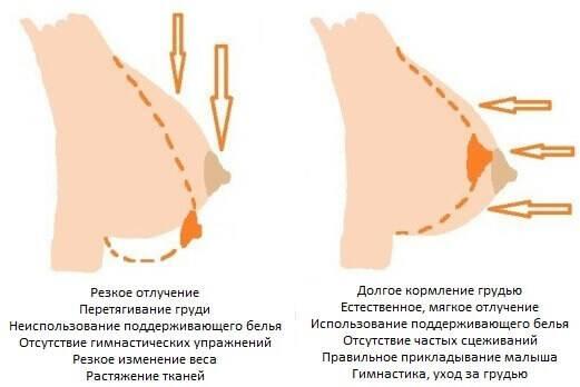 По каким причинам происходит увеличение груди при беременности: когда она начинает расти?