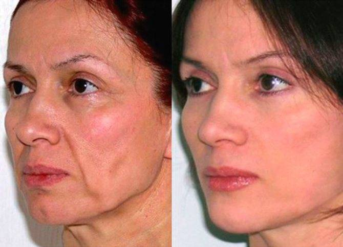 Уход за лицом после 50 лет – советы косметолога