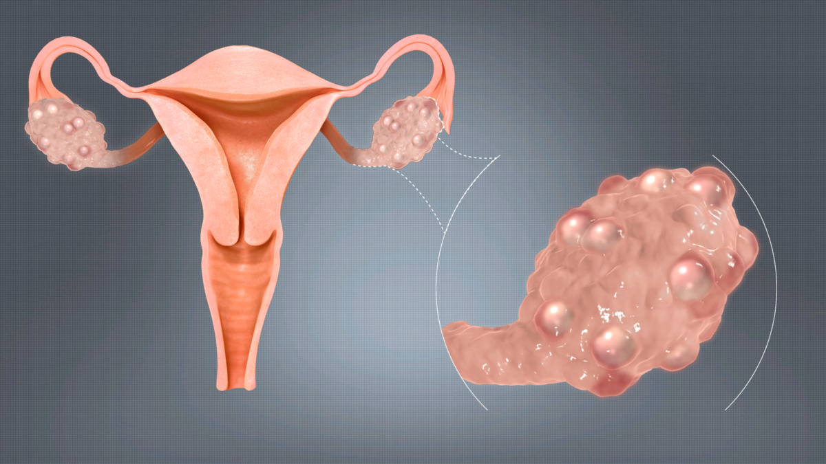 Что такое фолликулярный яичник и какое требуется лечение