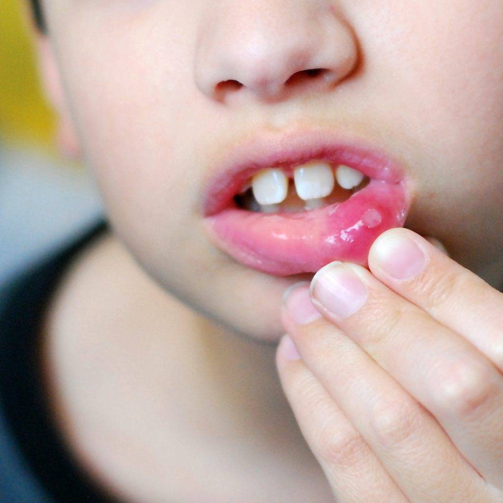 Как обнаружить и вылечить афтозный стоматит у ребенка