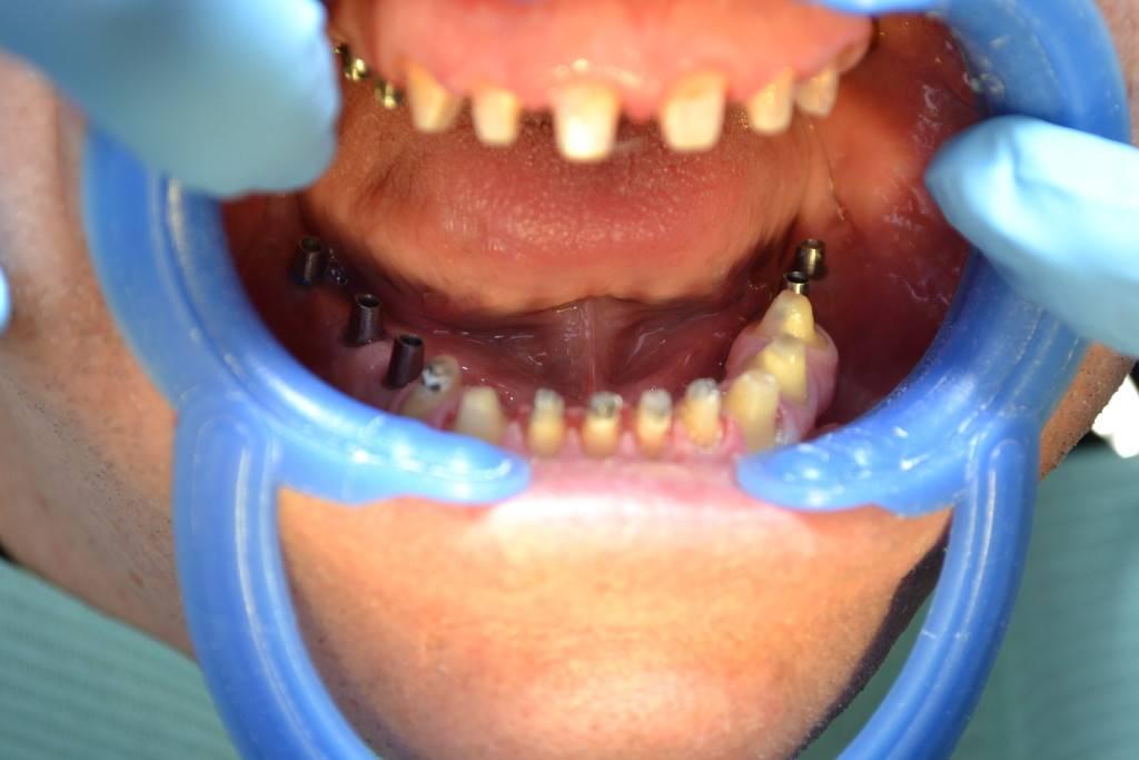 Осложнения после имплантации зубов, боль, онемение, потеря чувствительности. осложнения после имплантации нижней, верхней челюсти.