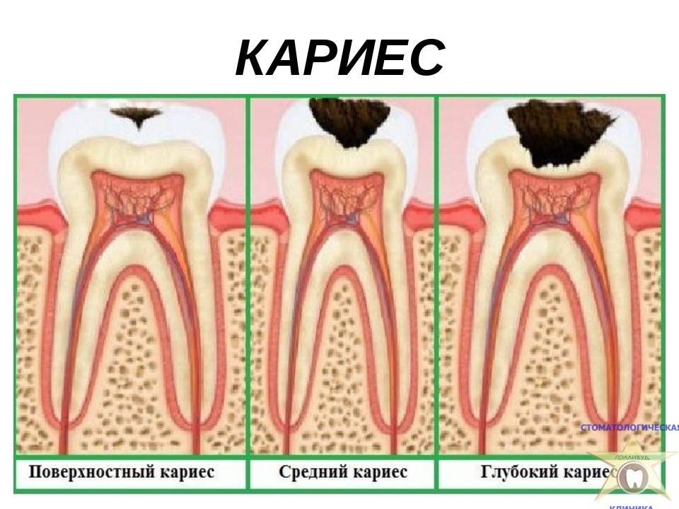 Декомпенсированная форма кариеса: симптомы, причины, лечение, профилактика, фото декомпенсированной формы кариеса, цены в москве