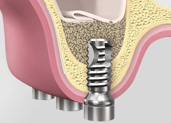 Как нарастить костную ткань десны