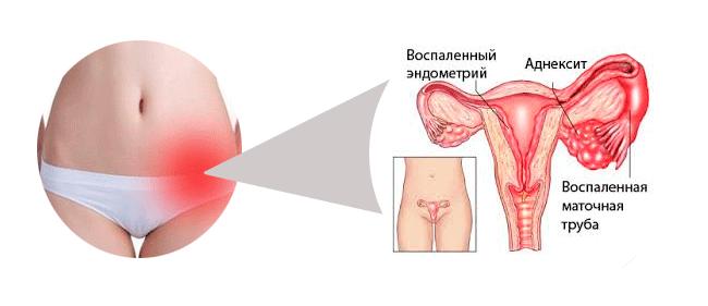 Сальпингоофорит и беременность: какие последствия? сальпингоофорит - что это такое? сальпингоофорит: лечение