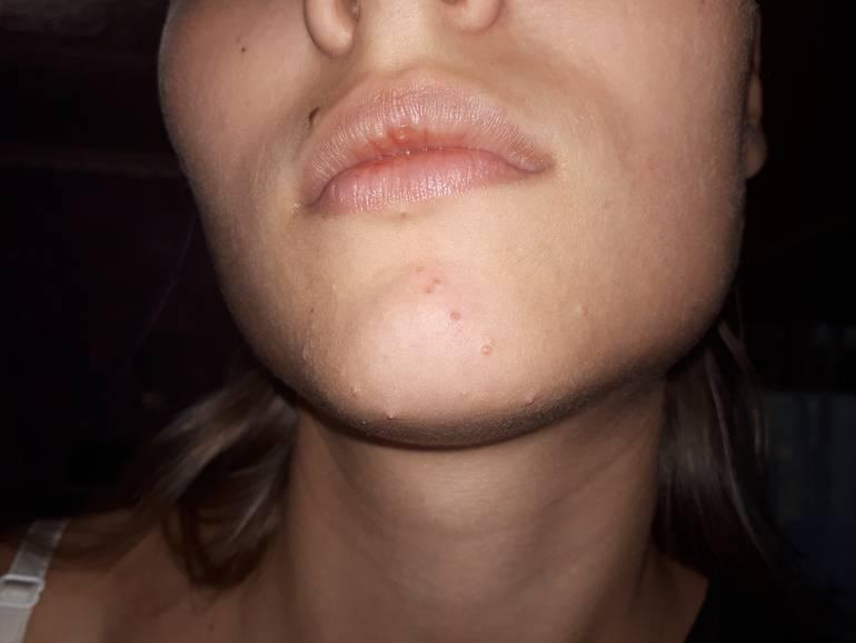 Основные причины появления прыщей вокруг рта у женщин и мужчин