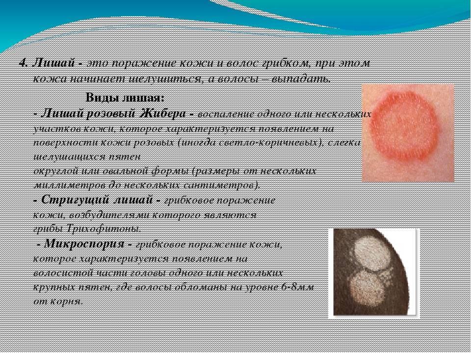 Как начинается лишай: первые признаки, симптомы, причины, диагностика, лечение и профилактика