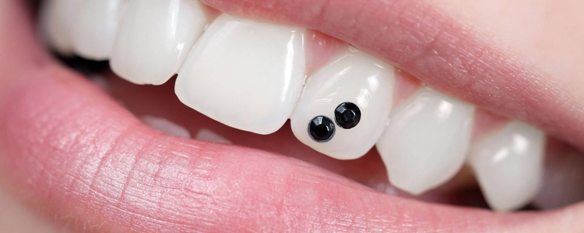 Скайсы или стразы на зуб