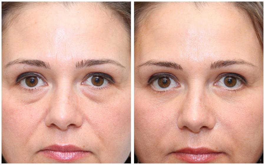 Современные средства от морщин вокруг глаз