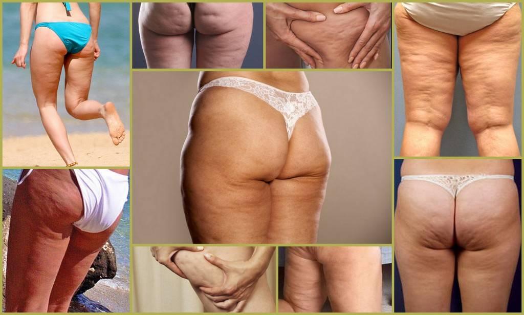 Как избавиться от дряблой кожи на ногах и ягодицах, упражнения, салонные и домашние процедуры