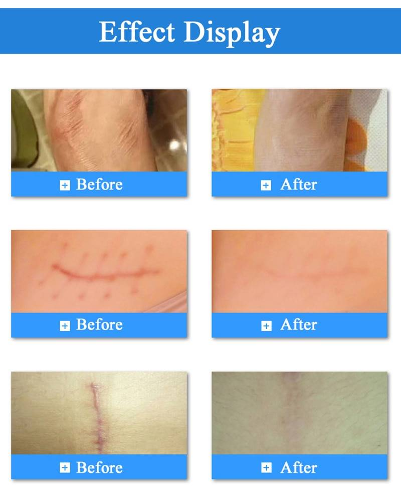 Удаление рубцов и шрамов лазером: особенности, цена, фото до и после