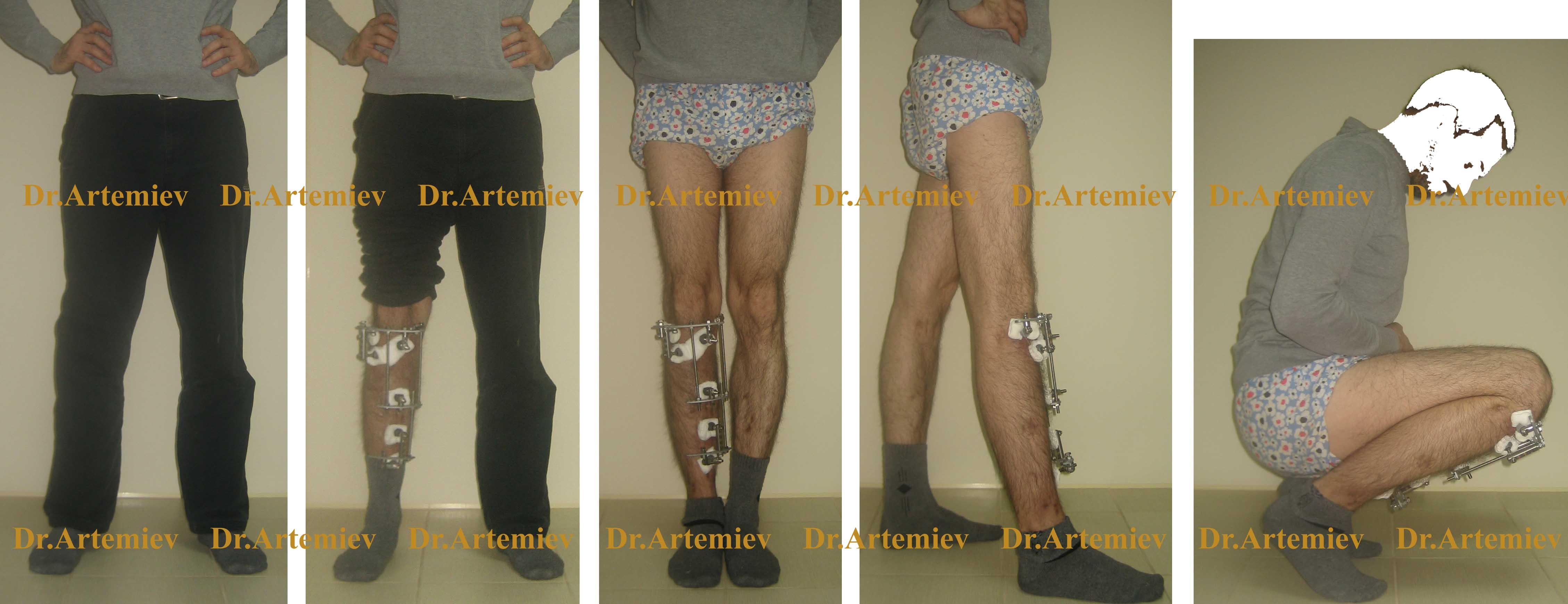 Исправление кривизны ног или как выпрямить кривые ноги?
