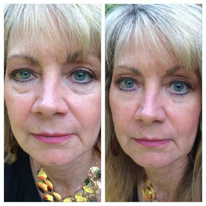 Она нанесла крем от геморроя себе на лицо… результат ошарашил даже самых опытных косметологов!