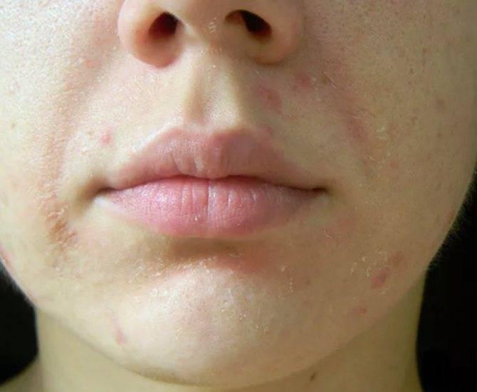 Шелушится кожа вокруг рта что делать. шелушение кожи на лице. лечение высыпаний в зоне губ